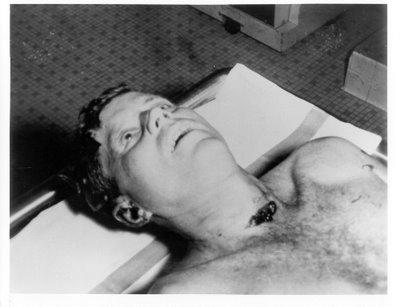 kennedy assassination autopsy pictures. JFK Autopsy Photo